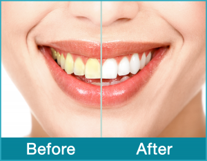 Smile-Before-After-B